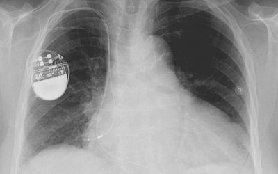 Managing Heart Conditions with Implantable Electronic Devices