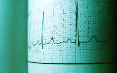 ECG Recording Cambridge | Arranging your Appointment